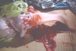 下腹部から大量出血