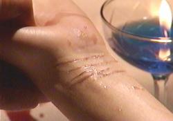 愛美の手首の傷痕