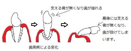 歯周病による歯の変化
