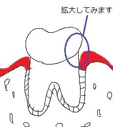 1歯周ポケットの説明