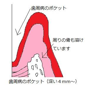 歯周病のポケット
