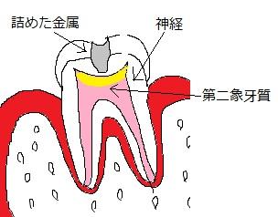 第二象牙質