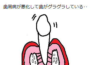 歯周病に尾kされ歯