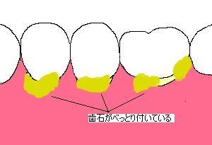 歯石がついてる