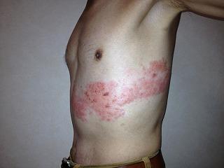 帯状疱疹-04
