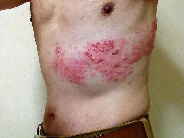 帯状疱疹-07大きめ