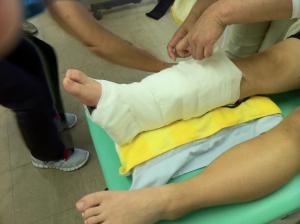 大阪市旭区千林大宮しおかわ鍼灸整骨院陸上におる脛骨疲労骨折2