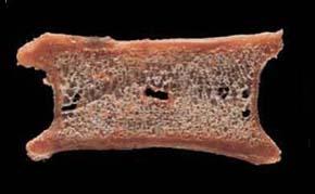 正常な背骨の断面図