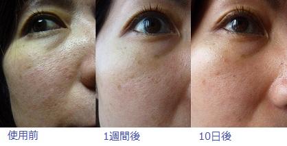 肌比べ201109-4
