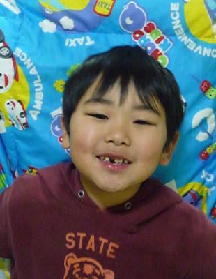 歯が抜けたよ2009-02