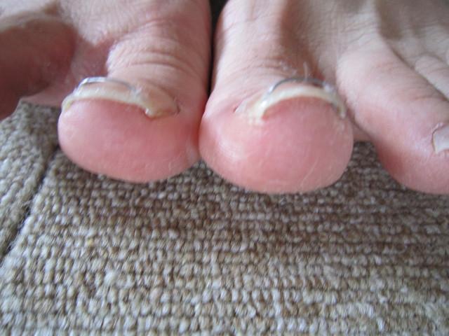 巻き爪治療 (2)s