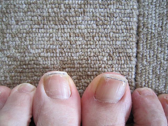 巻き爪治療s