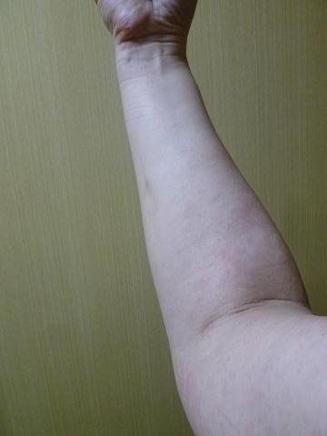 蕁麻疹0606