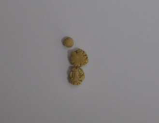 シュウ酸カルシウム結石