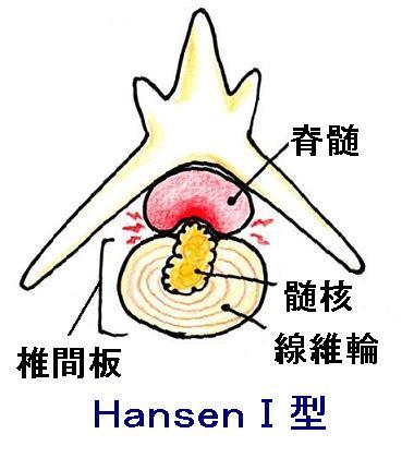 HansenⅠ型