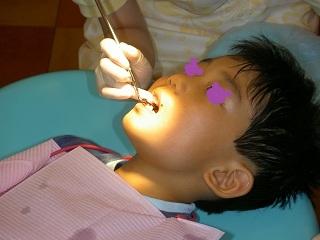 はじめて歯医者さん1009251