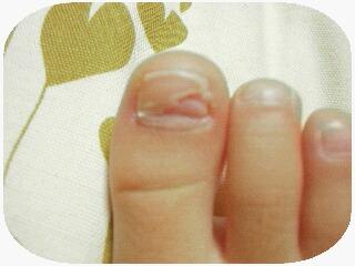 爪その後2
