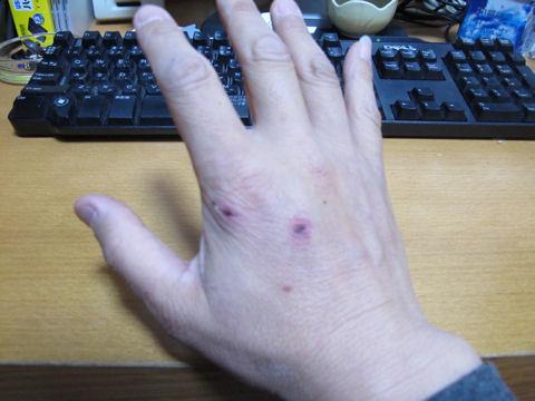 飼い犬に手を噛まれた傷跡