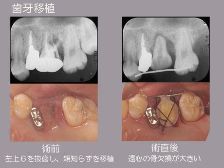 歯牙移植1