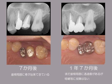 歯牙移植2のコピー