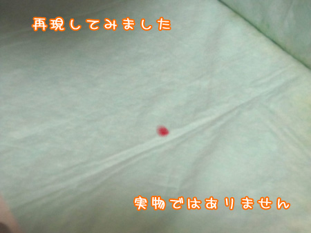 急性腸炎で下血。2