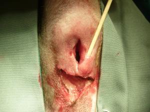 肛門周囲腺腫 術中