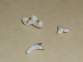 カガリの歯(最後の犬歯&まだあるらしいよ)