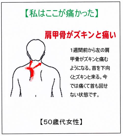 (肩甲骨)